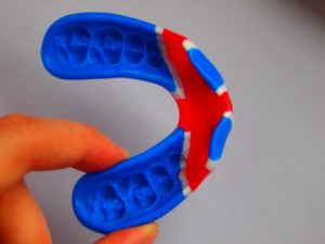 Sports Mouthguard at Church Court Dental Practice